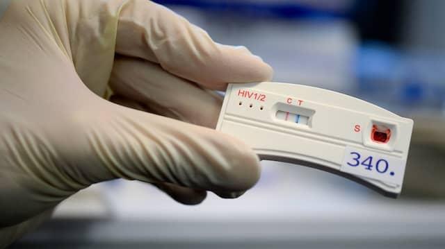 HIV-Schnelltest: Im Jahr 2019 starben geschätzt 380 Menschen an HIV.