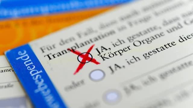 An diesem Donnerstag stimmt der Bundestag ab über neue Regeln für die Organspende.