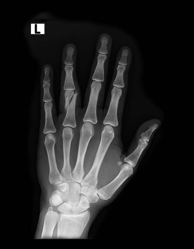 Röntgenaufnahme eines gebrochenen Ringfingers: Die Suche nach solchen Frakturen könnte der Computer den Radiologen bald abnehmen.