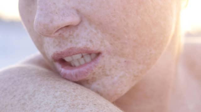 Mit Hauttyp I sollte man erst gar nicht versuchen, braun zu werden - und sich vielleicht mal vom Dermatologen untersuchen lassen. Doch das gestaltet sich nicht so einfach, wie die Krankenkasse verspricht.