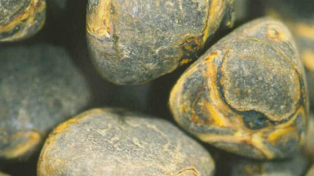Krank wie lange galle entfernen Gallenblase entfernen