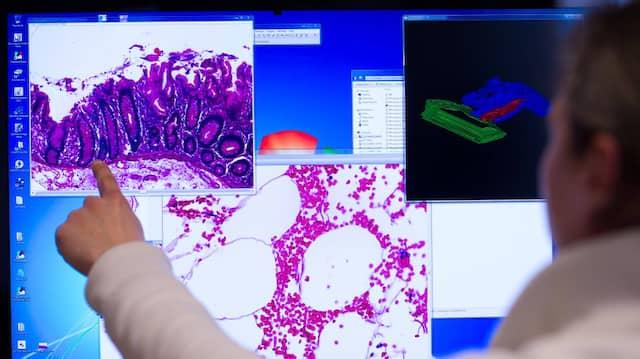 Ärzte begutachten  eine eingescannten Probe eines Stück Gewebes aus dem Dickdarm
